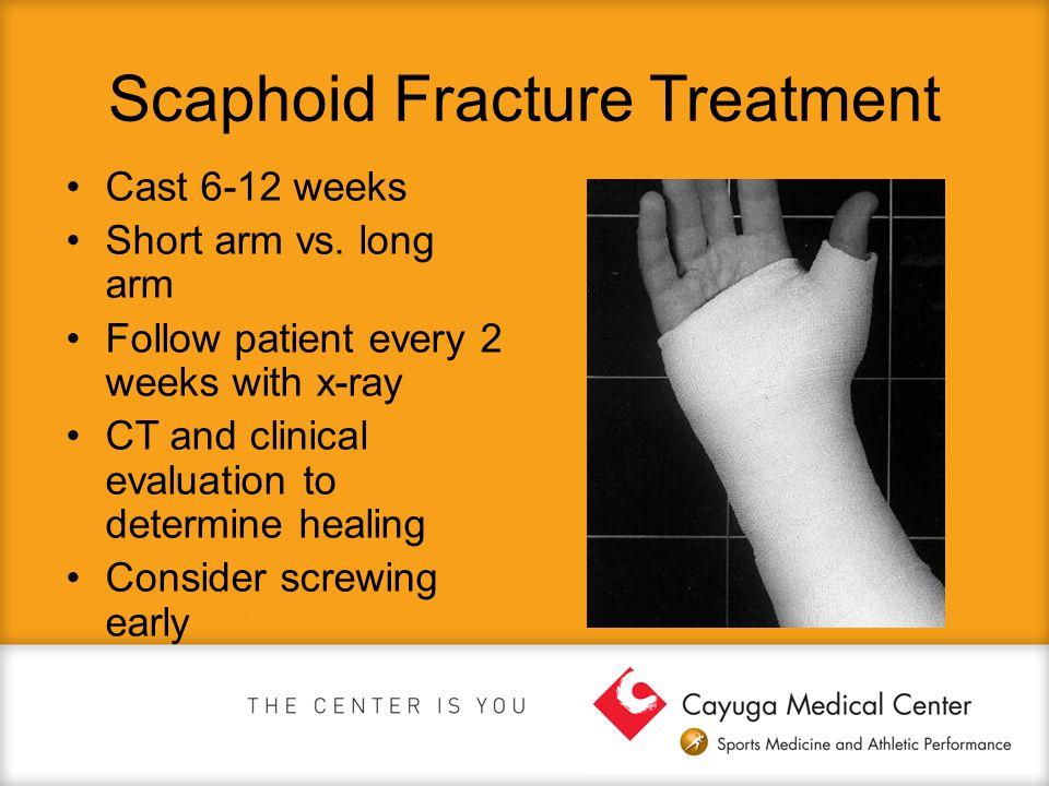 Scaphoid Fracture Treatment