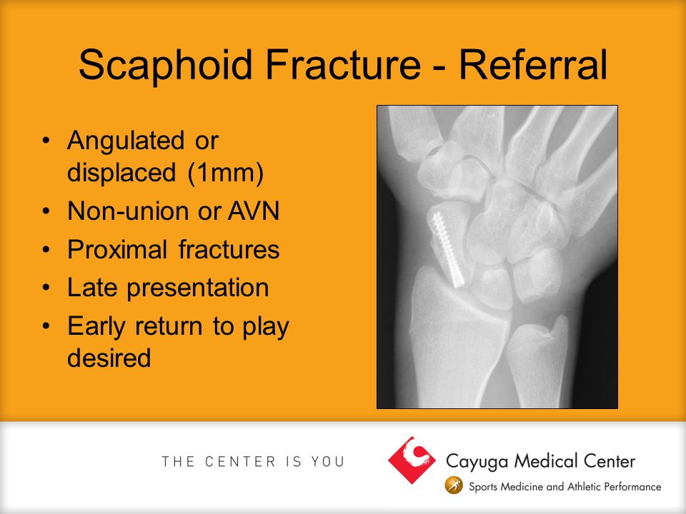Scaphoid Fracture - Referral