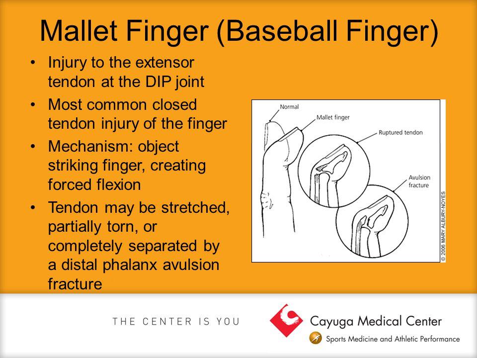 Mallet Finger (Baseball Finger)