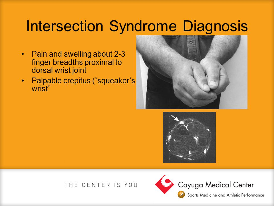 Intersection Syndrome Diagnosis