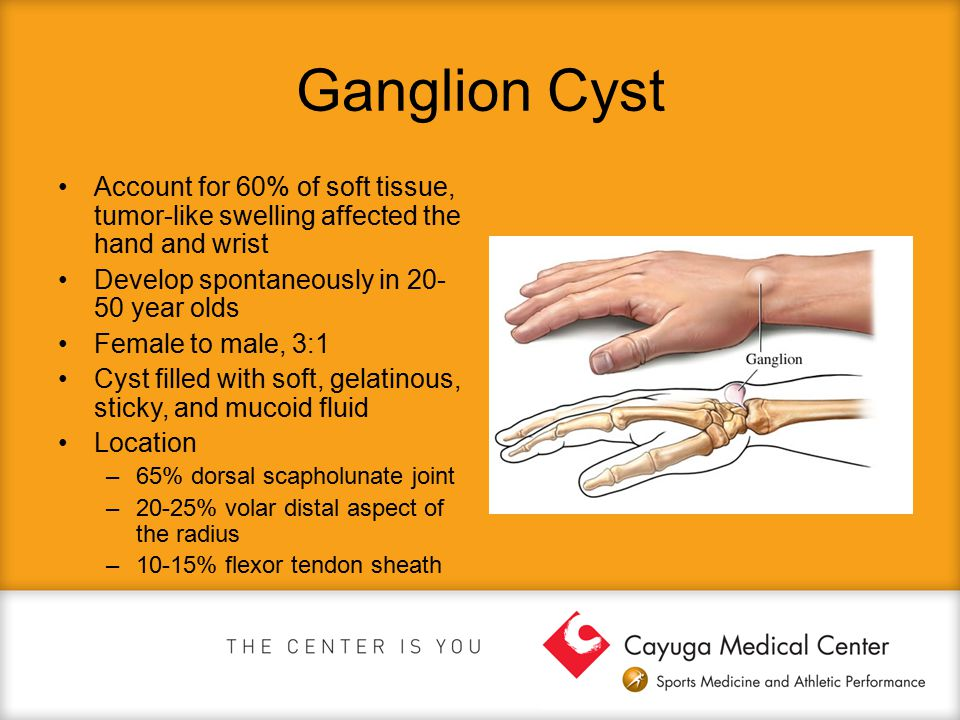 Ganglion Cyst Account for 60% of soft tissue, tumor-like swelling affected the hand and wrist. Develop spontaneously in 20-50 year olds.