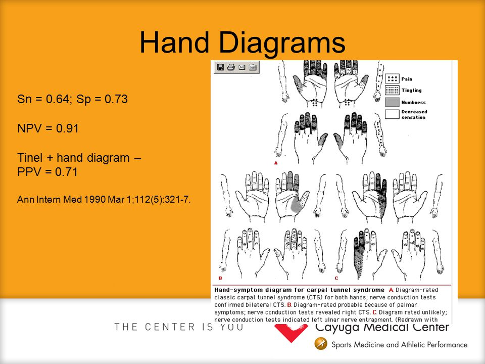 Hand Diagrams Sn = 0.64; Sp = 0.73 NPV = 0.91 Tinel + hand diagram –