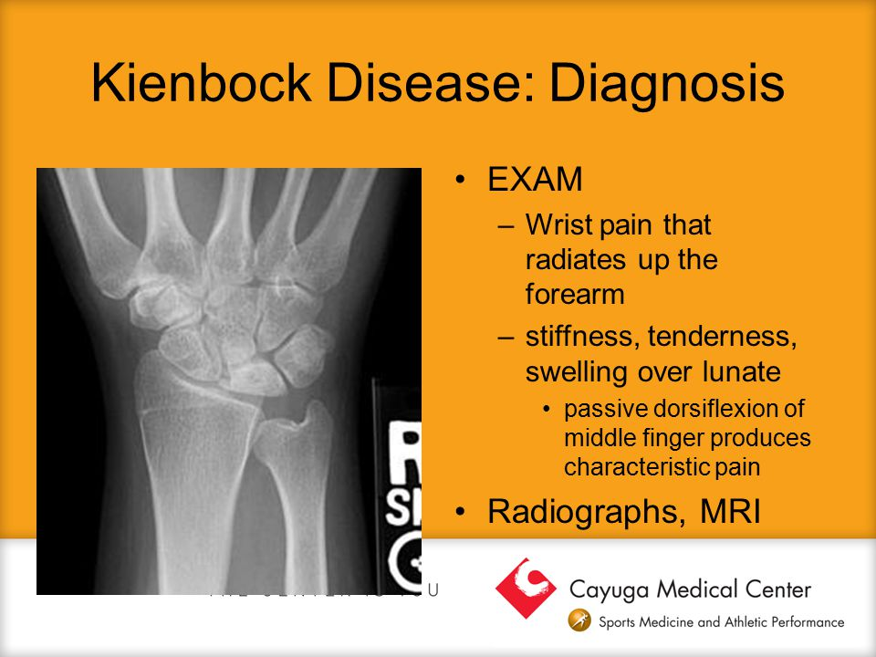 Kienbock Disease: Diagnosis