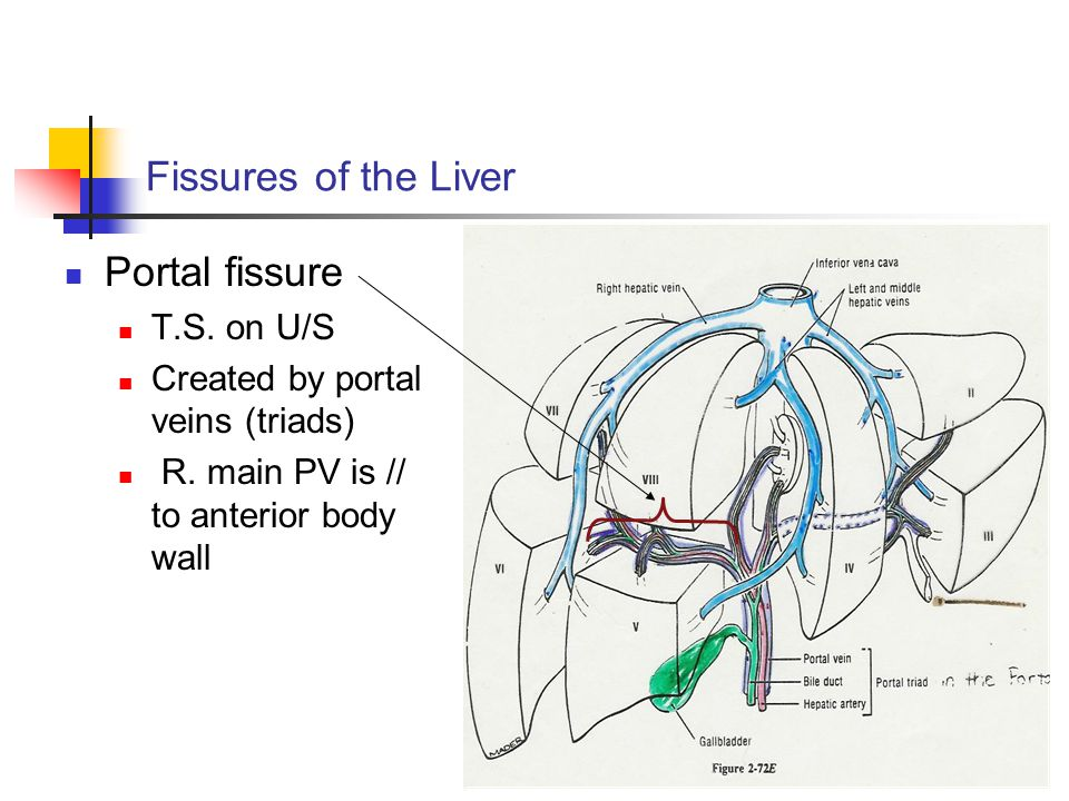 Fissures of the Liver Portal fissure T.S. on U/S