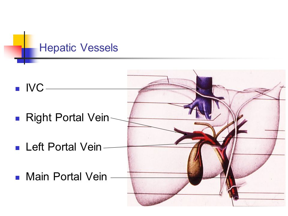 Hepatic Vessels IVC Right Portal Vein Left Portal Vein Main Portal Vein