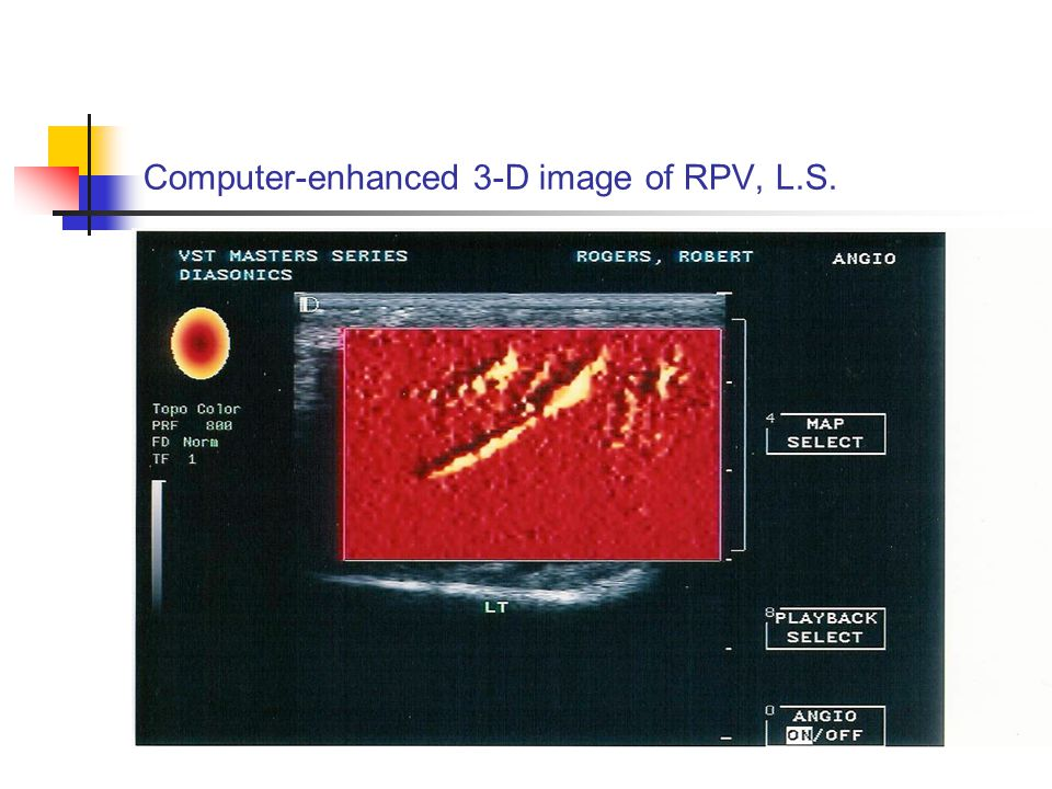 Computer-enhanced 3-D image of RPV, L.S.