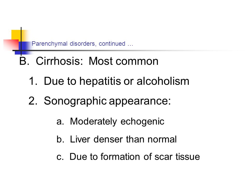B. Cirrhosis: Most common 1. Due to hepatitis or alcoholism