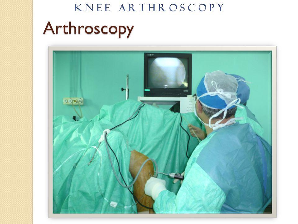 K N E E A R T H R O S C O P Y Arthroscopy