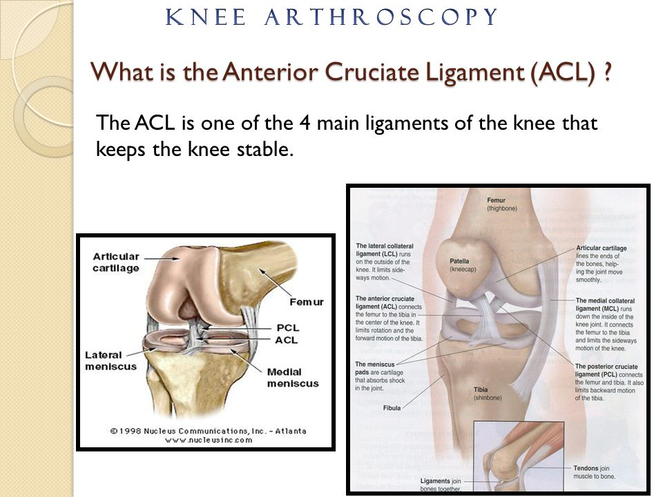 What is the Anterior Cruciate Ligament (ACL)