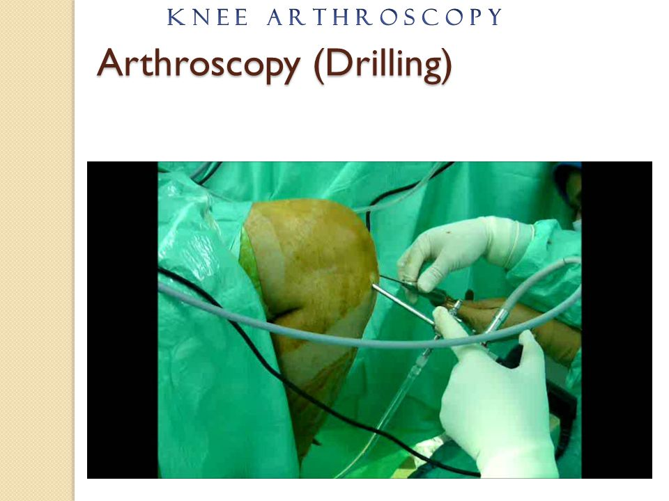 Arthroscopy (Drilling)