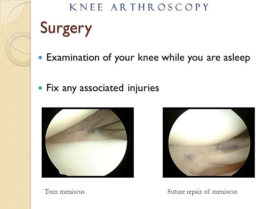Surgery Examination of your knee while you are asleep