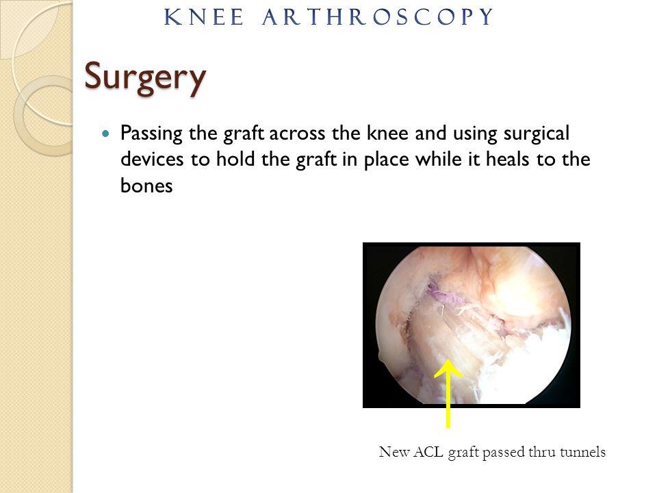 ↑ Surgery K N E E A R T H R O S C O P Y