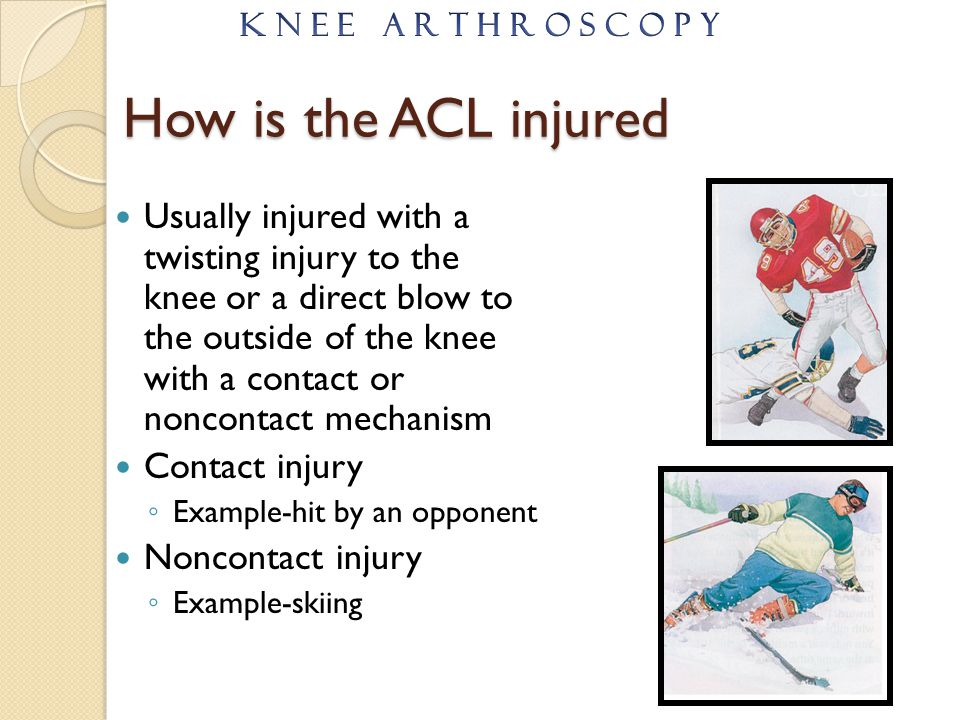 K N E E A R T H R O S C O P Y How is the ACL injured.