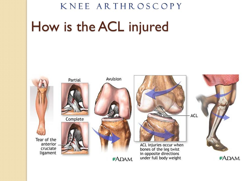 K N E E A R T H R O S C O P Y How is the ACL injured