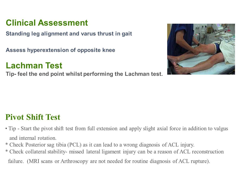 Clinical Assessment Lachman Test Pivot Shift Test