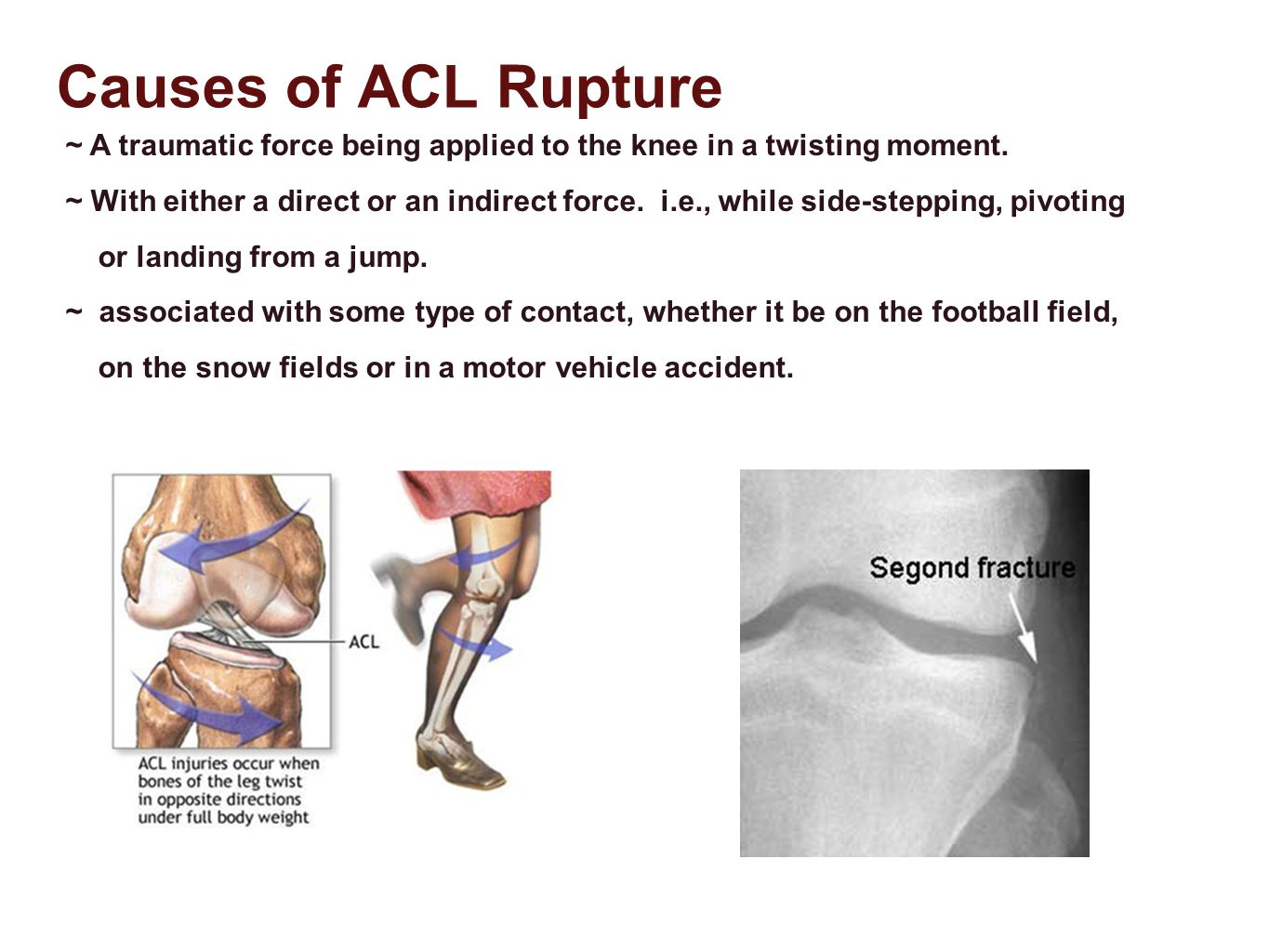 Causes of ACL Rupture ~ A traumatic force being applied to the knee in a twisting moment.