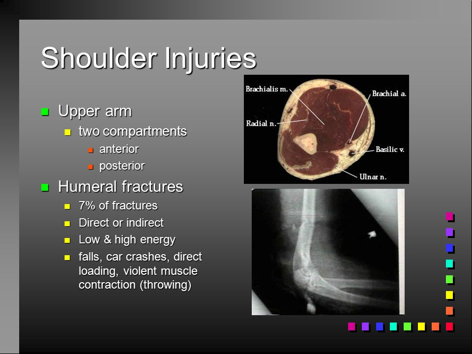 Shoulder Injuries Upper arm Humeral fractures two compartments