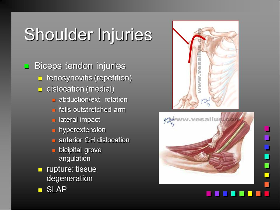 Shoulder Injuries Biceps tendon injuries tenosynovitis (repetition)