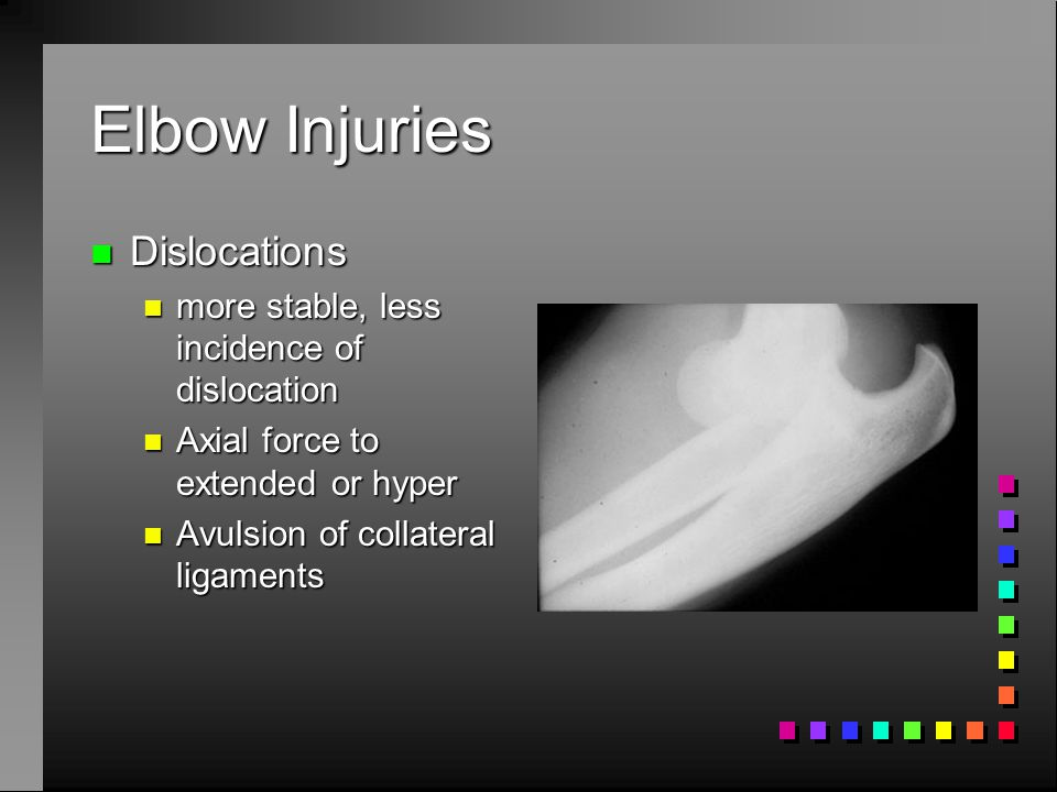 Elbow Injuries Dislocations more stable, less incidence of dislocation