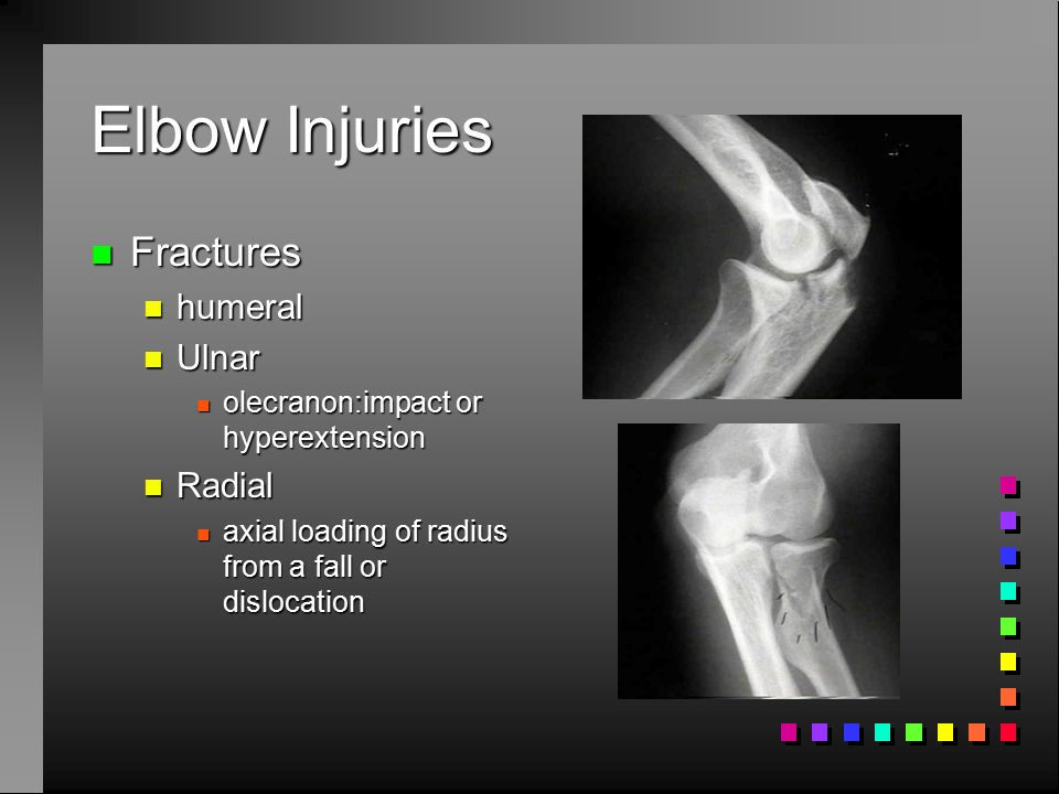 Elbow Injuries Fractures humeral Ulnar Radial