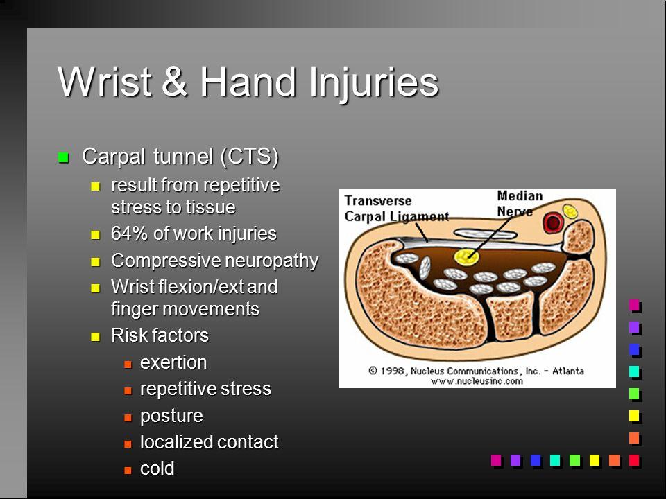 Wrist & Hand Injuries Carpal tunnel (CTS)