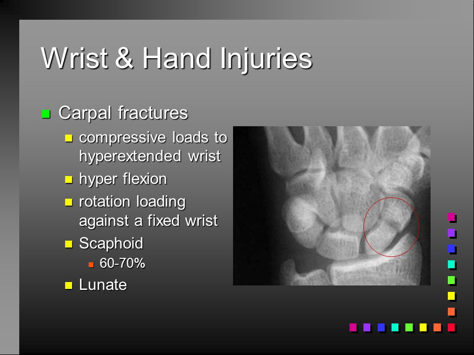 Wrist & Hand Injuries Carpal fractures