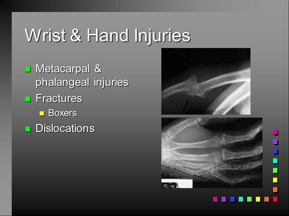 Wrist & Hand Injuries Metacarpal & phalangeal injuries Fractures