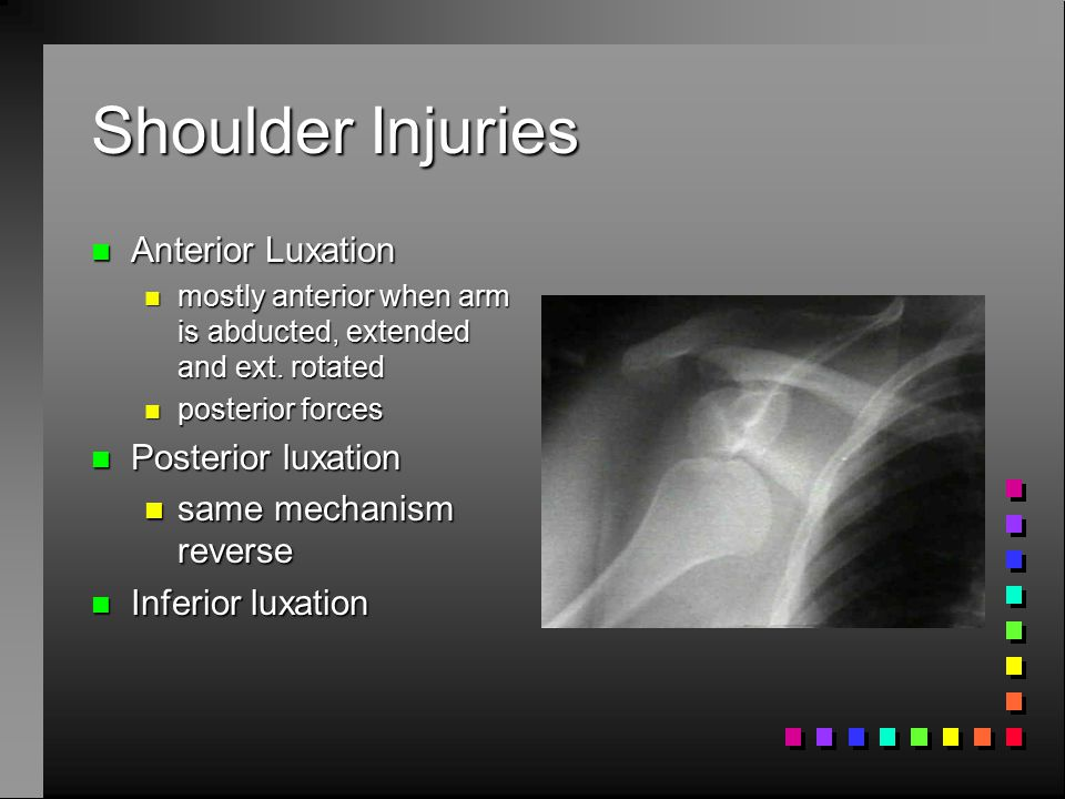 Shoulder Injuries Anterior Luxation Posterior luxation