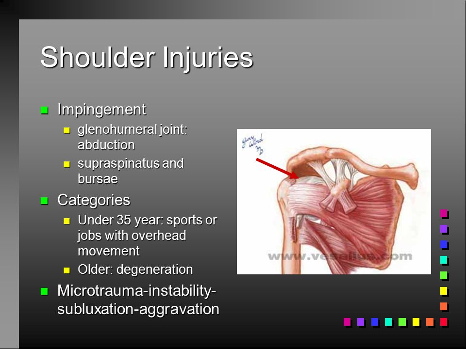 Shoulder Injuries Impingement Categories
