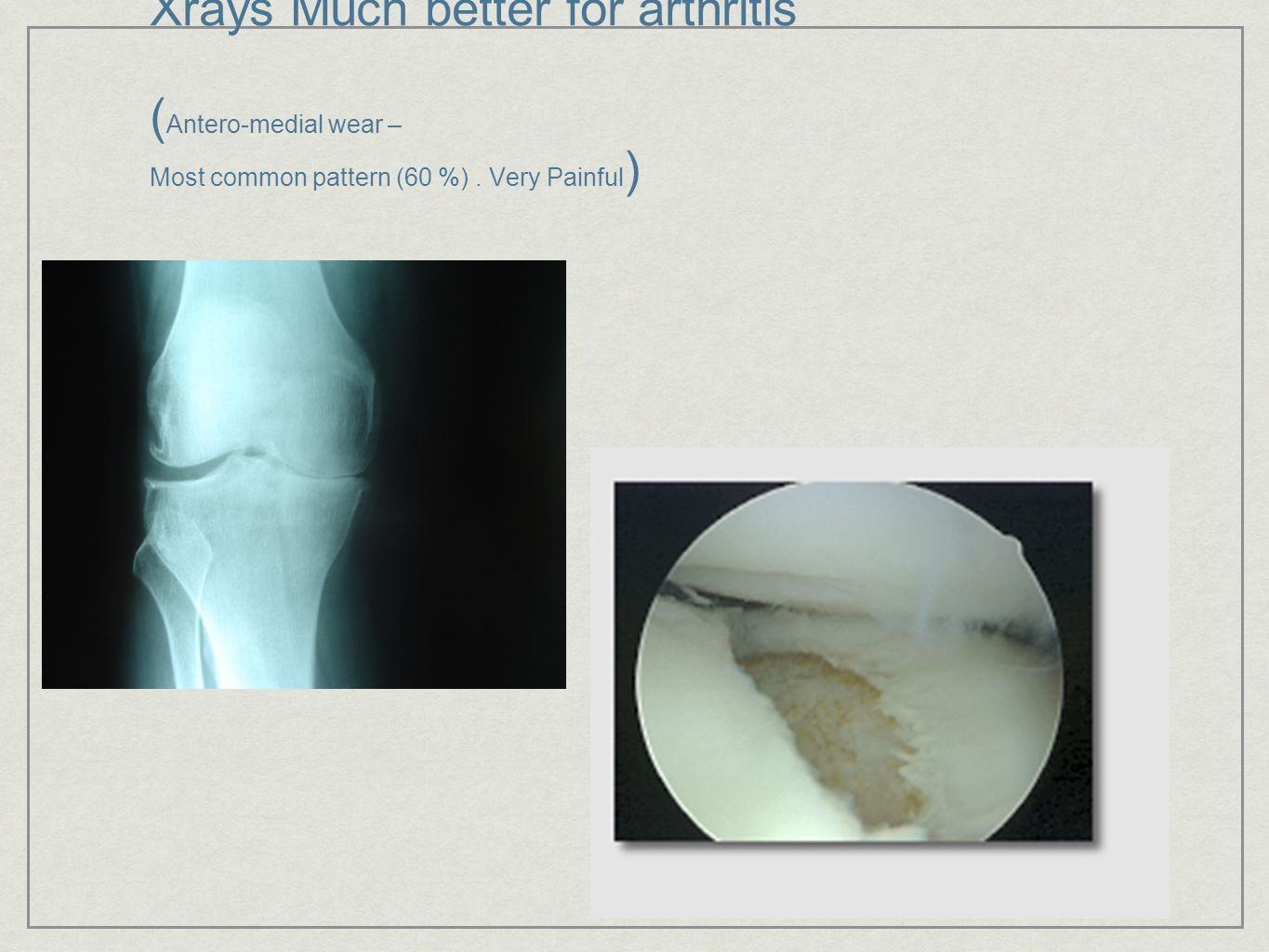 Xrays Much better for arthritis (Antero-medial wear – Most common pattern (60 %) . Very Painful)