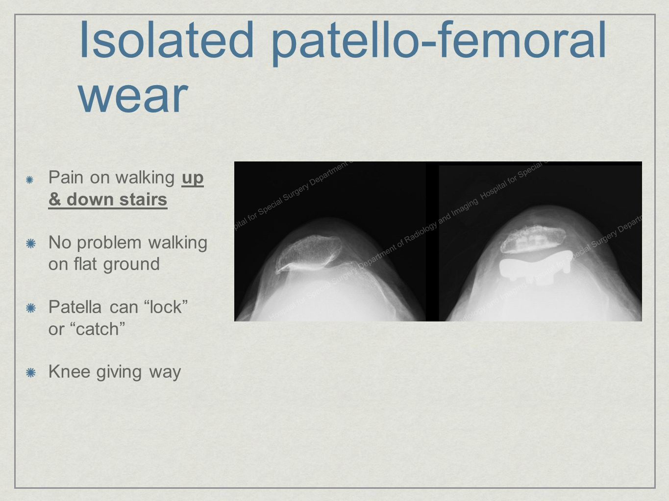 Isolated patello-femoral wear