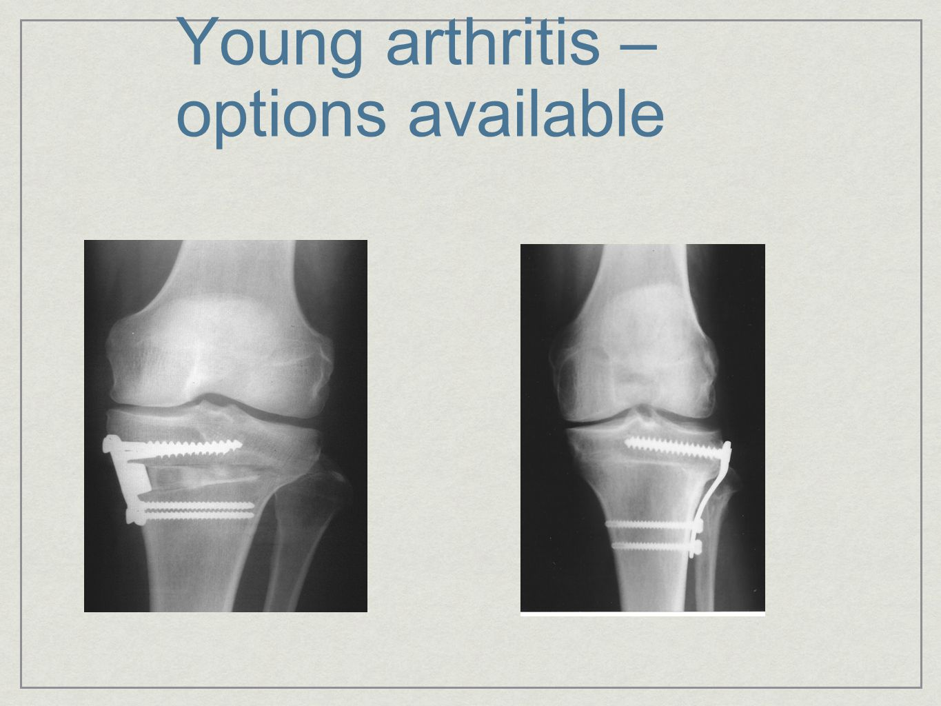 Young arthritis – options available