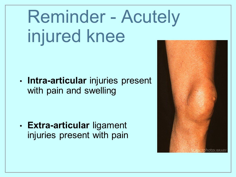 Reminder - Acutely injured knee