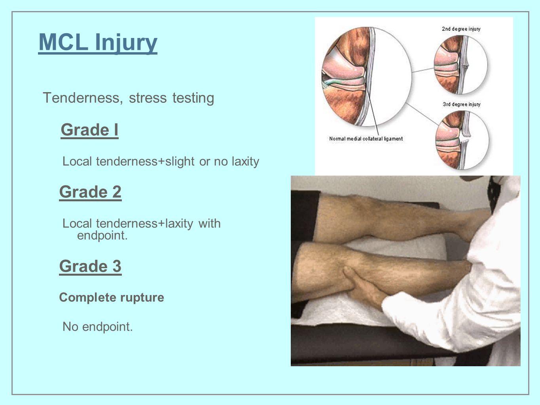 MCL Injury Grade 2 Grade 3 Tenderness, stress testing Grade I