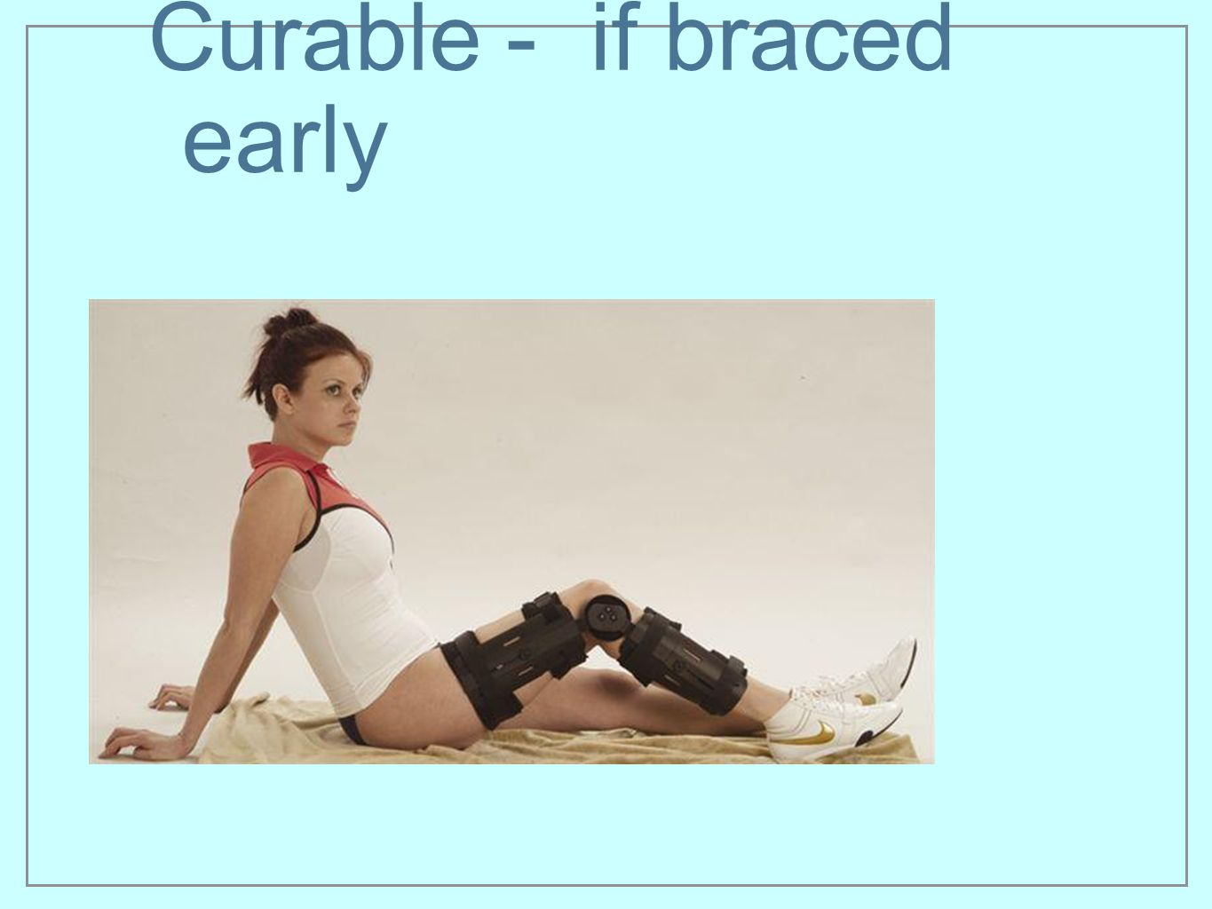 Curable - if braced early