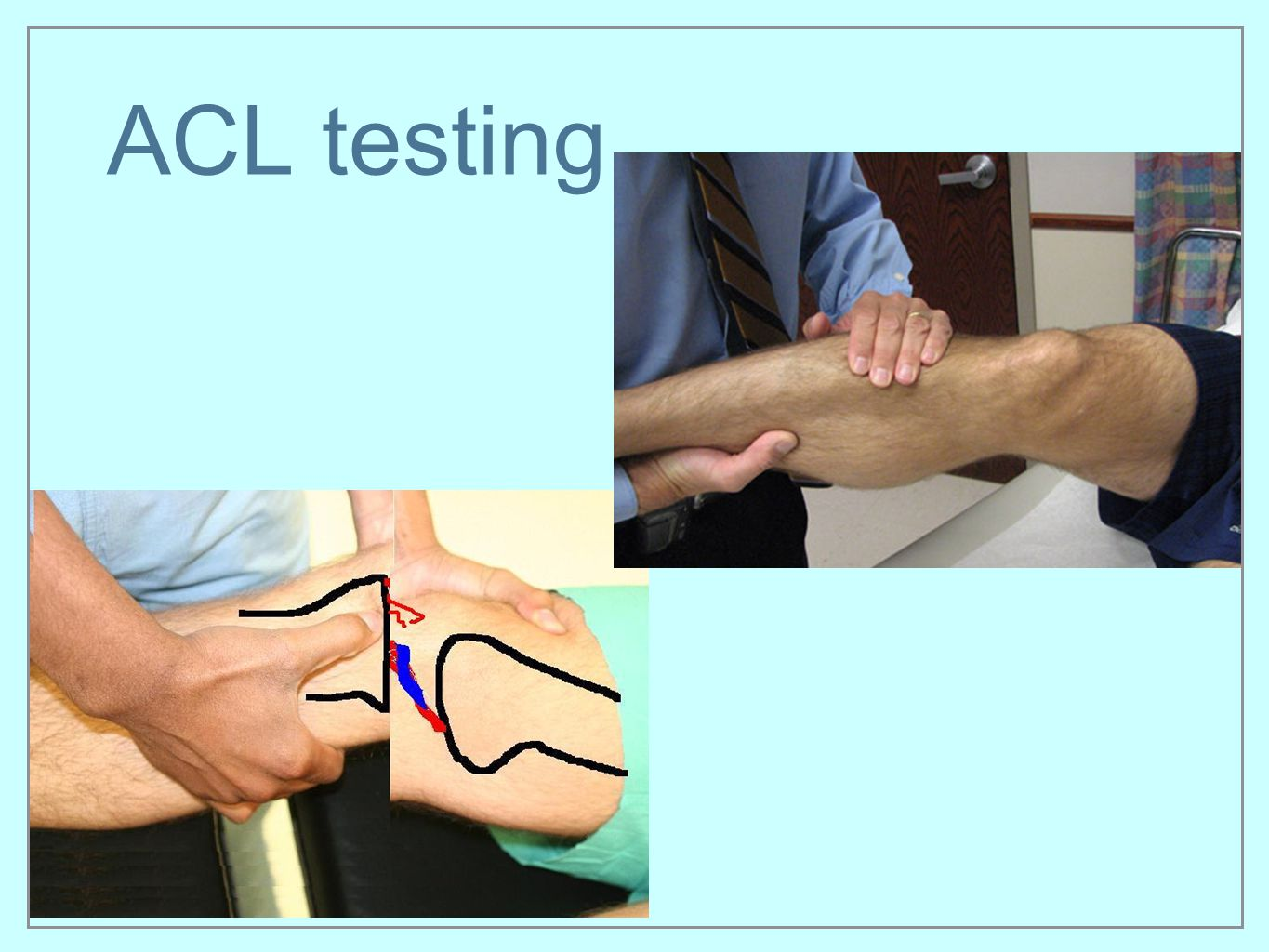 ACL testing