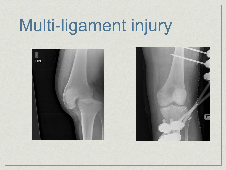 Multi-ligament injury