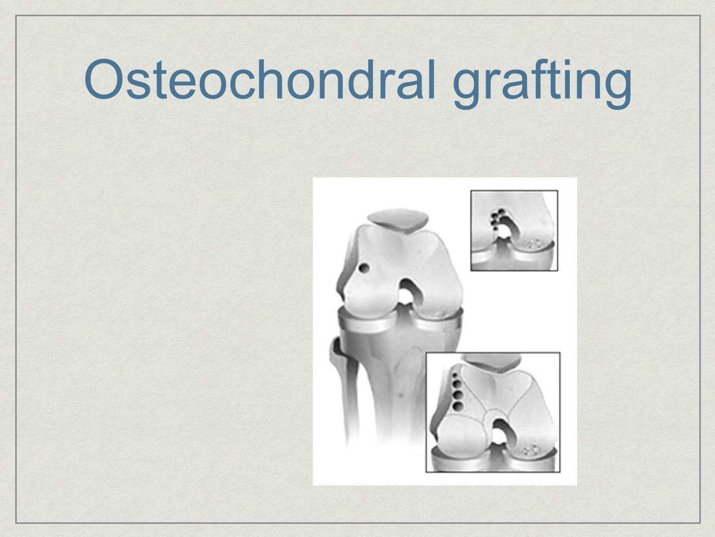 Osteochondral grafting