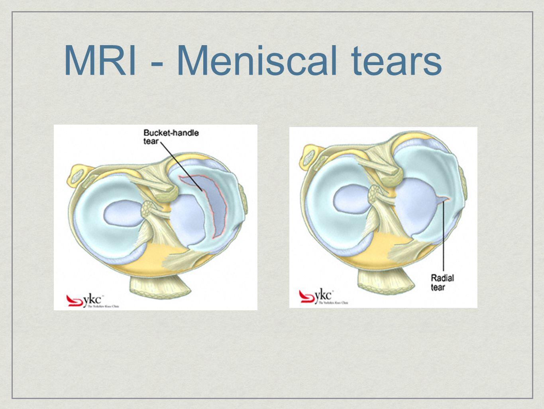 MRI - Meniscal tears