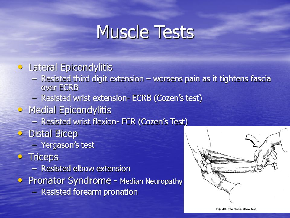 Muscle Tests Lateral Epicondylitis Medial Epicondylitis Distal Bicep