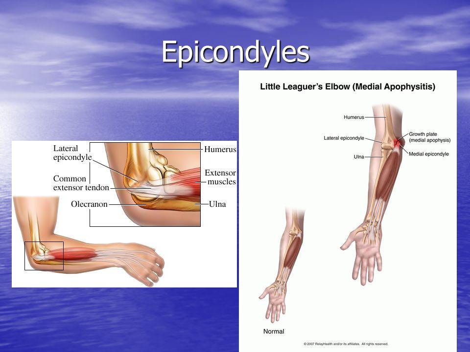 Epicondyles