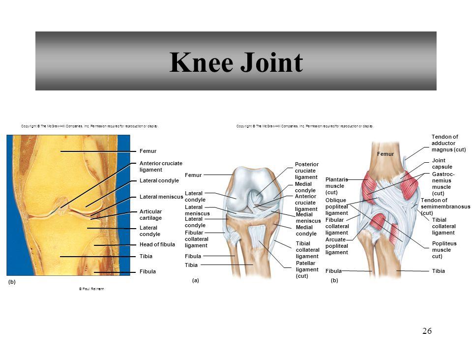 Knee Joint Tendon of adductor magnus (cut) Femur Femur Joint capsule