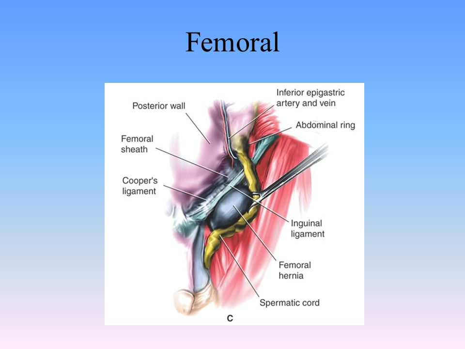 Femoral STST p. 405: Femoral hernias are more common in females than males due to anatomical differences in the femoral area.