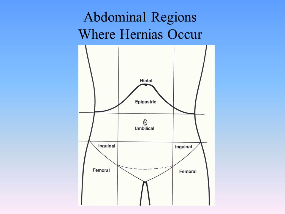 Abdominal Regions Where Hernias Occur