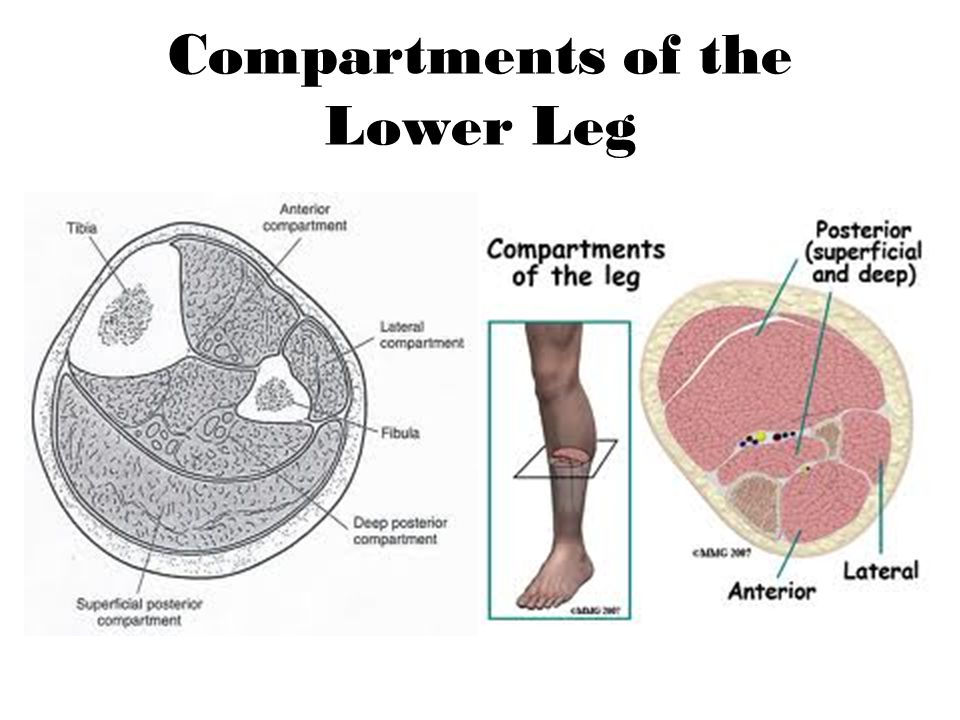 Compartments of the Lower Leg