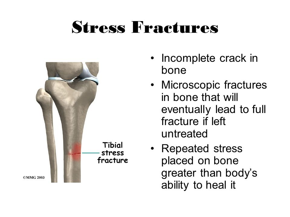 Stress Fractures Incomplete crack in bone