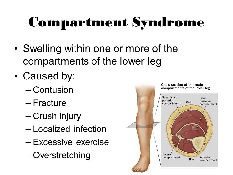 Compartment Syndrome Swelling within one or more of the compartments of the lower leg. Caused by: Contusion.