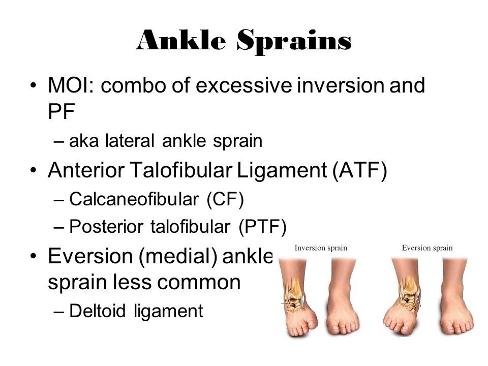 Ankle Sprains MOI: combo of excessive inversion and PF