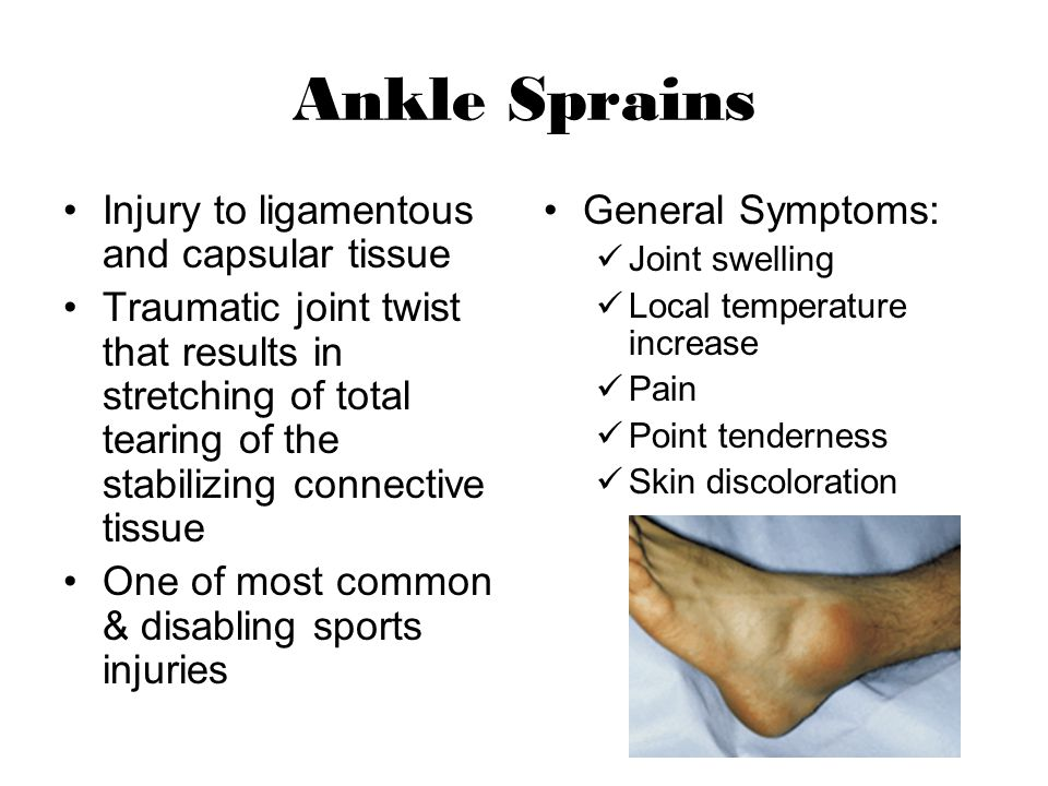 Ankle Sprains Injury to ligamentous and capsular tissue