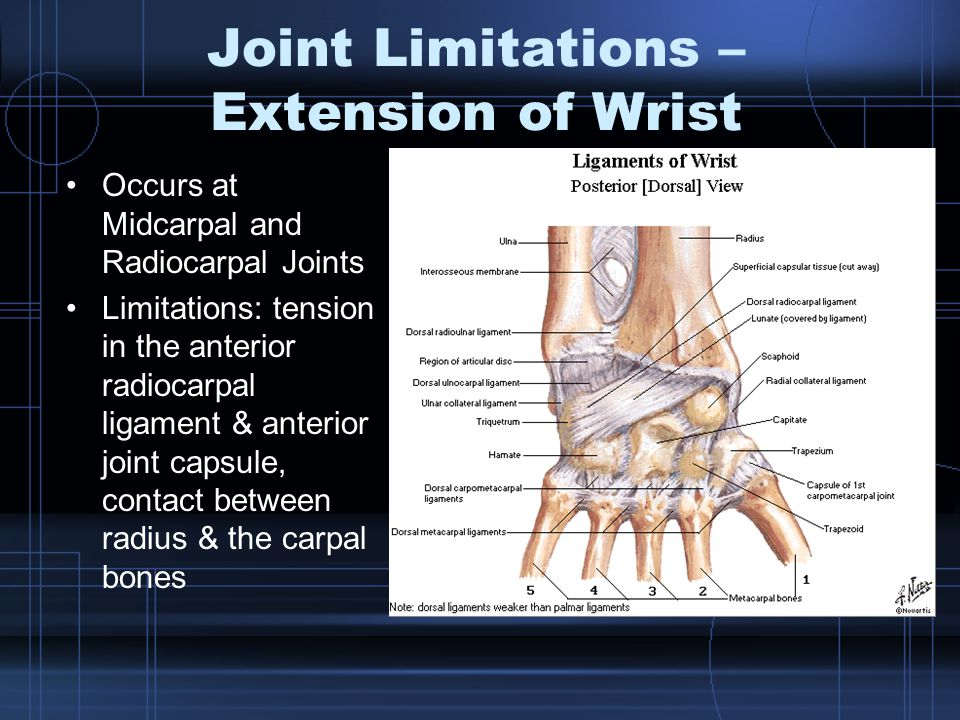 Joint Limitations – Extension of Wrist